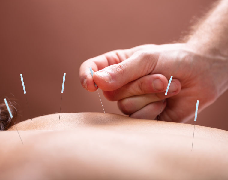 Nutrition and Acupuncture